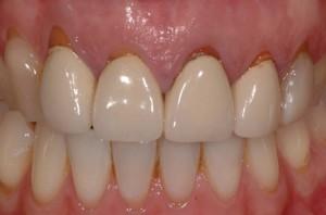 dentistas-valencia-cirugia-plastica-mucogingival-1