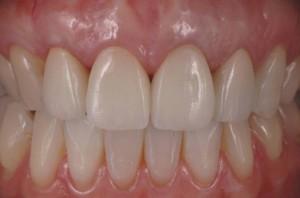 dentistas-valencia-cirugia-plastica-mucogingival-2