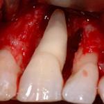 dentistas-valencia-cirugia-regenerativa-periodontal-2