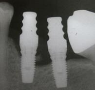 dentistas-valencia-periimplantitis-1