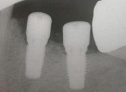 dentistas-valencia-periimplantitis-2
