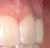 dentistas-valencia-tunelizacion-1