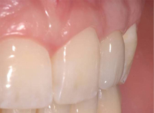 dentistas-valencia-tunelizacion-2