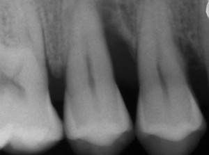 Regeneracion periodontal preoperatoria