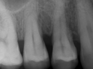 Regeneracion periodontal postoperatoria