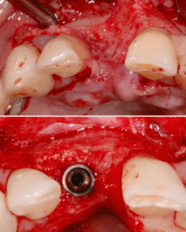 cirugia-regenerativa-implantologia-gbr