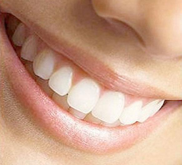 dentistas-valencia-01-estetica-dental