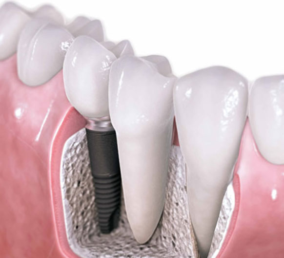 dentistas-valencia-02-implantologia