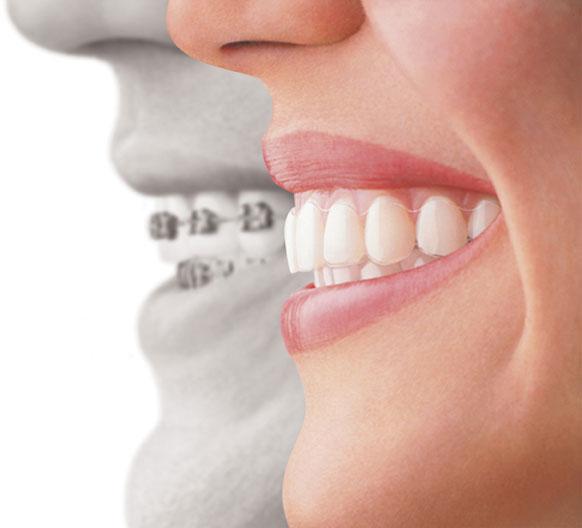 dentistas-valencia-03-ortodoncia