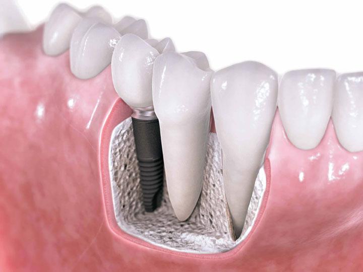 Restauración diente unitario