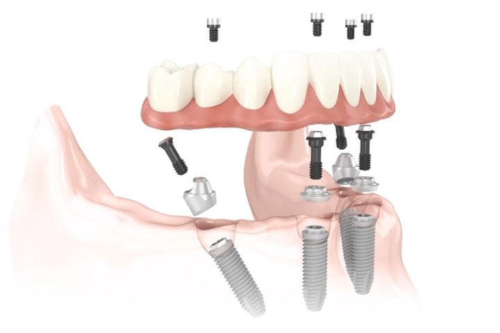Implantología inmediata