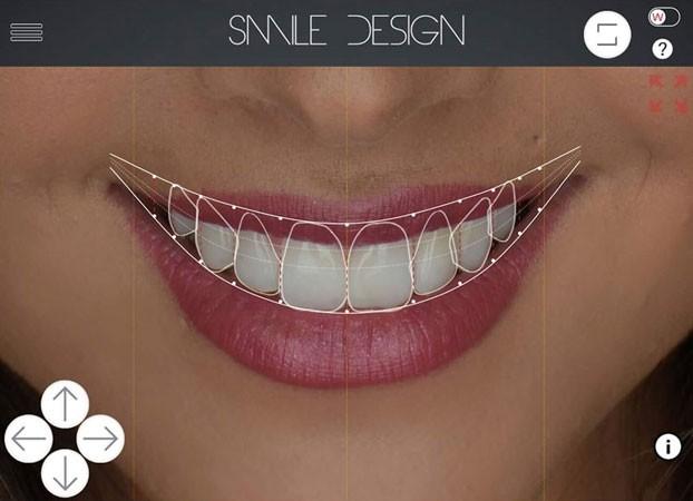 Qué es el Digital Smile Design